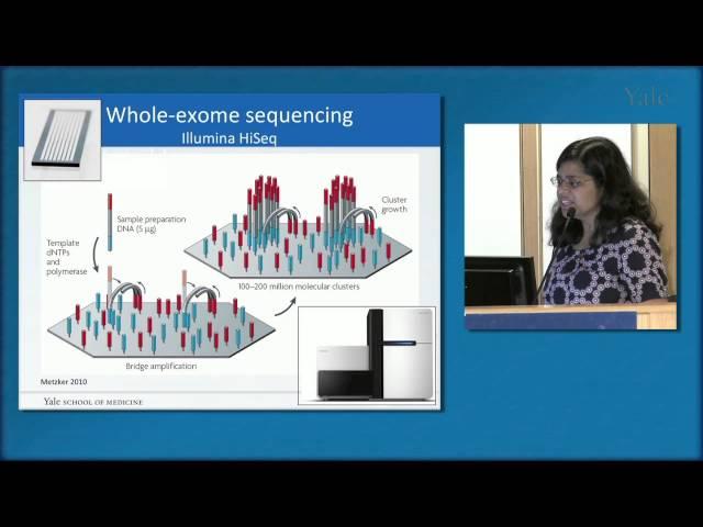 Genetics of Autism Spectrum Disorders, Dr. Abha Gupta