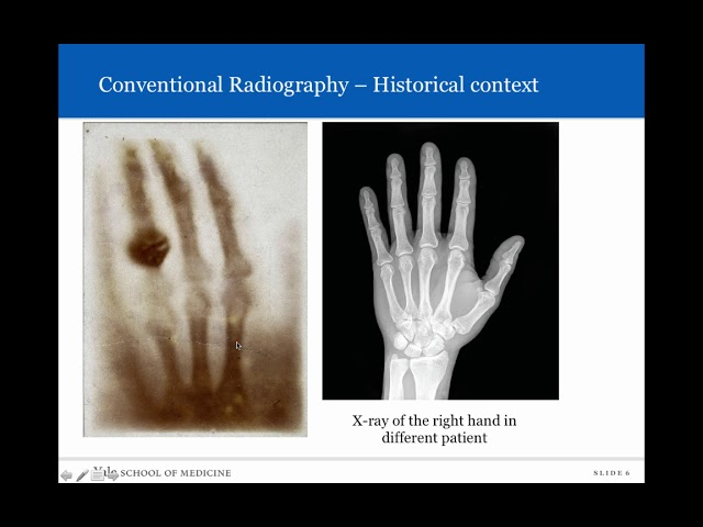 Introduction to Radiology: Conventional Radiology