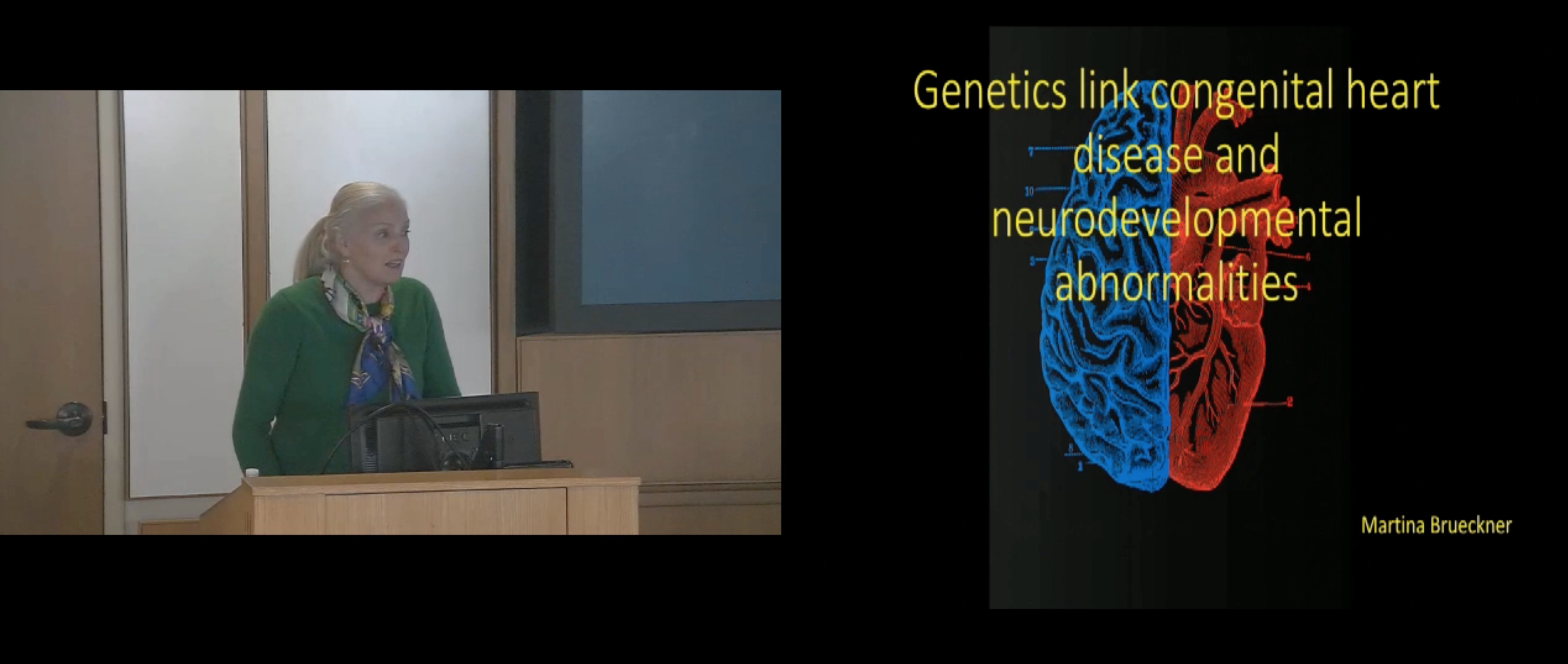 Genetics link congenital heart disease and neurodevelopment abnormalities