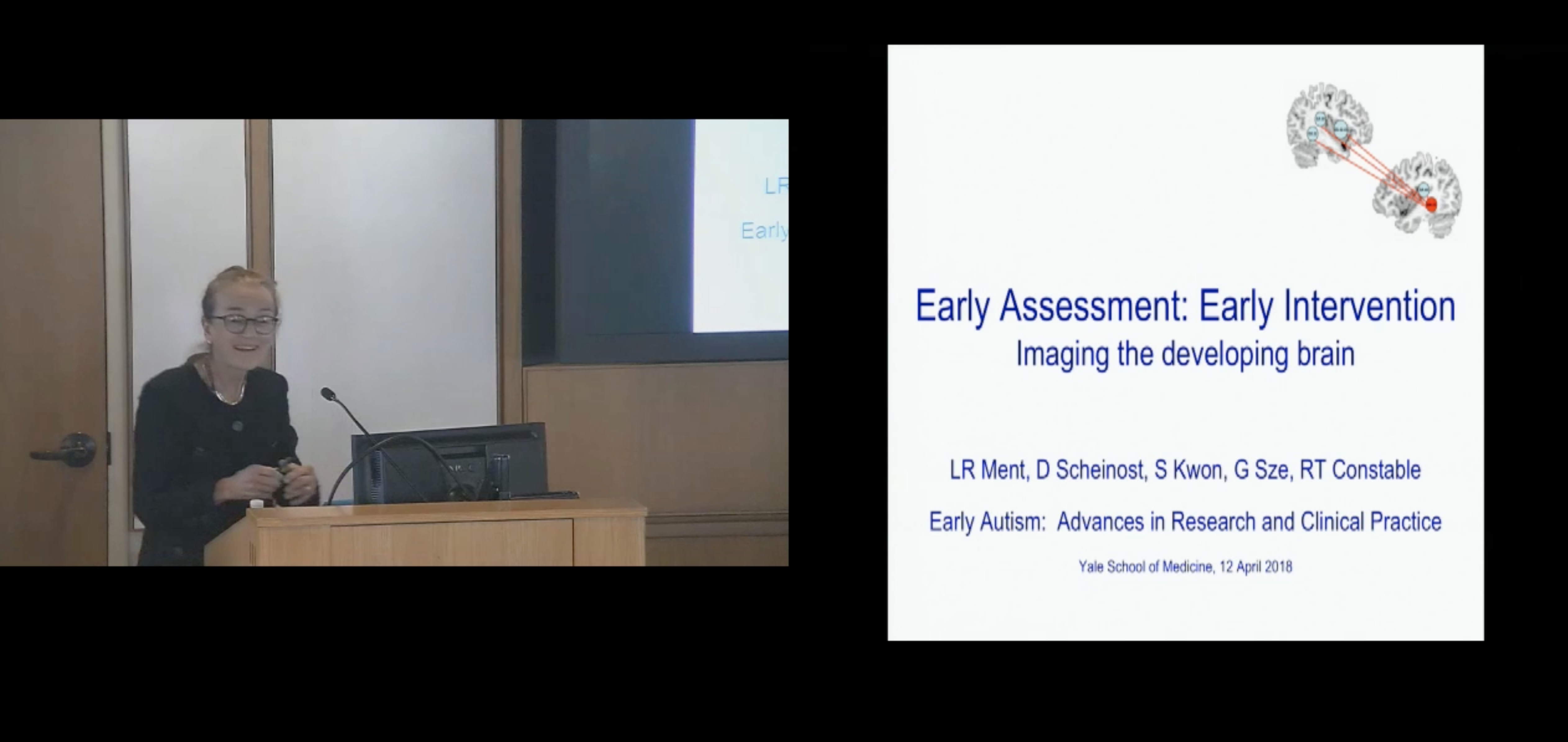 Early Assessment: Early Intervention Imaging the developing brain