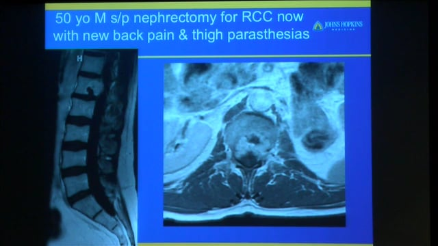 Daniel Sciubba: Approach to the spine tumor patient