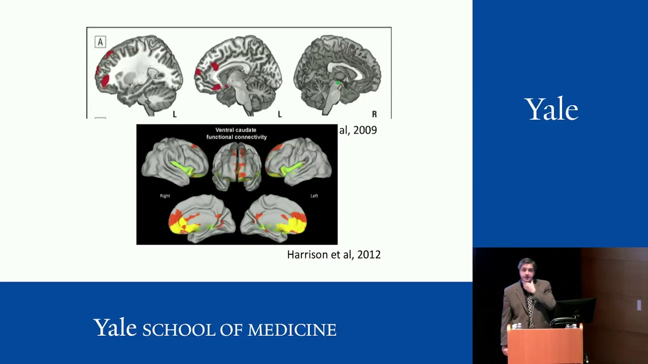 New Technologies to Enhance Therapy for OCD and Anxiety - Christopher Pittenger, MD, PhD